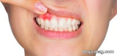 معجون های مفید برای رفع آبسه دندان